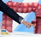Entrevista   veja como prevenir diagnosticar e tratar a diverticulite, Intestino Preso - Data: 08/09/2014 à Quadro Você e o Doutor - Record