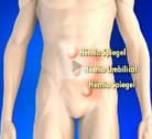 Entrevista   Conheça os diferentes tipos de hérnias e como se desenvolvem